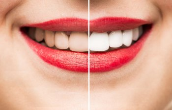 Before and After Teeth Whitening Smile