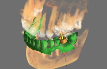 3D guided dental implants