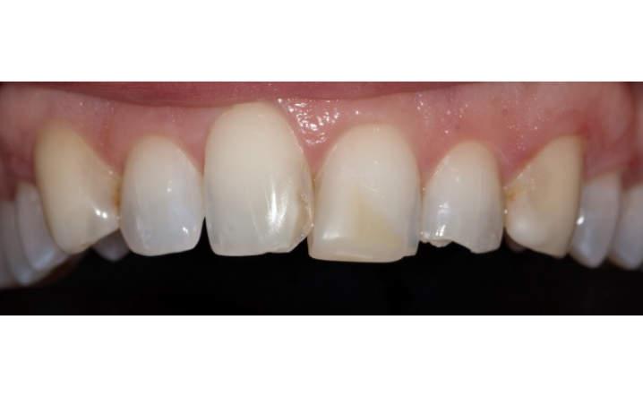 teeth before porcelain veneers procedure