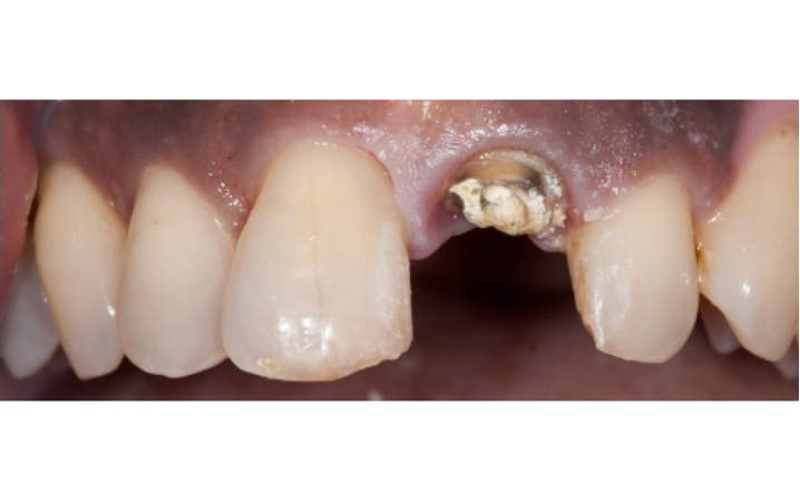 teeth before dental implant procedure
