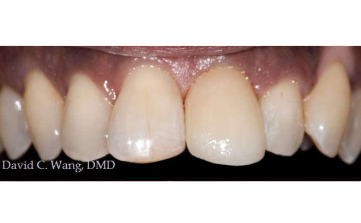 teeth after dental implant procedure
