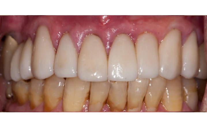upper teeth after porcelain crowns and veneers procedure