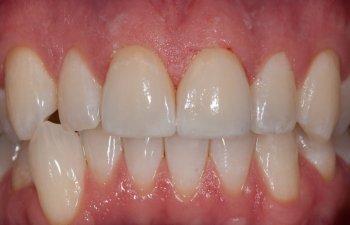 teeth after porcelain veneers procedure