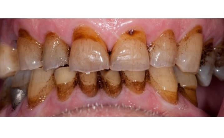 teeth before porcelain crowns and veneers procedure