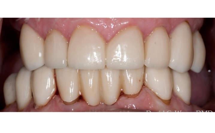 teeth after porcelain crowns and veneers procedure