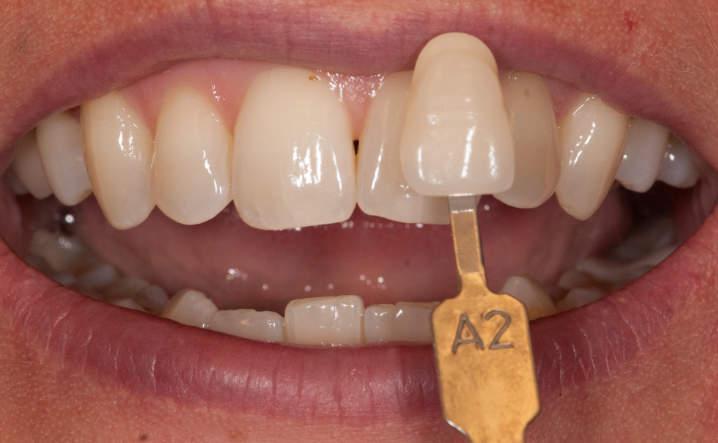 teeth before whitening