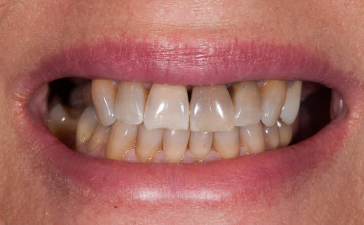 teeth before Kor Whitening