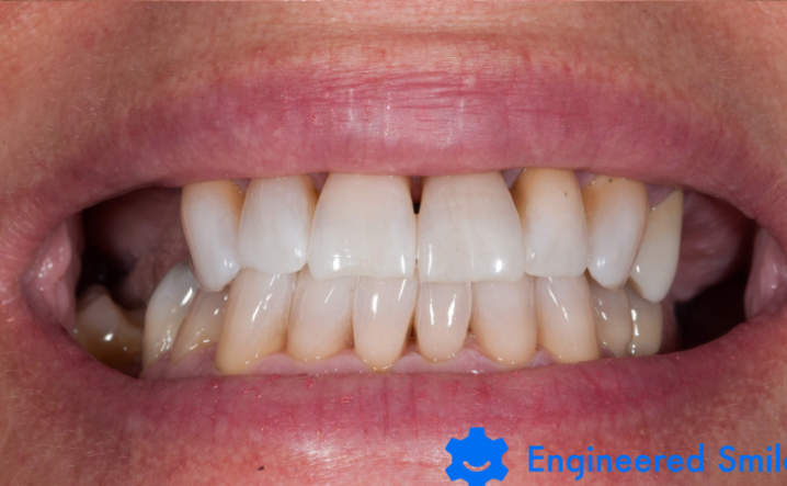 teeth after Kor Whitening
