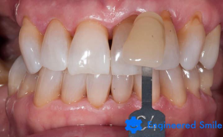 teeth after Kor Whitening