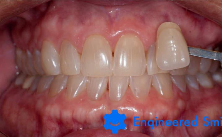 teeth before Kor Whitening