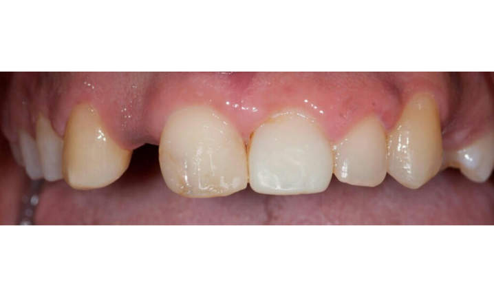 teeth before implant dentistry and veneers procedures