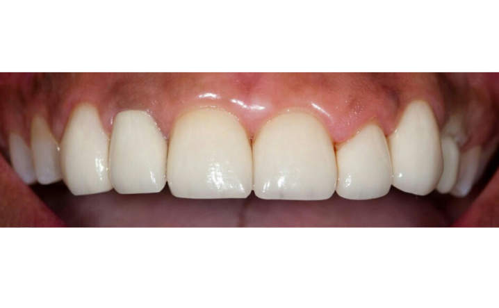 teeth after implant dentistry and veneers procedures