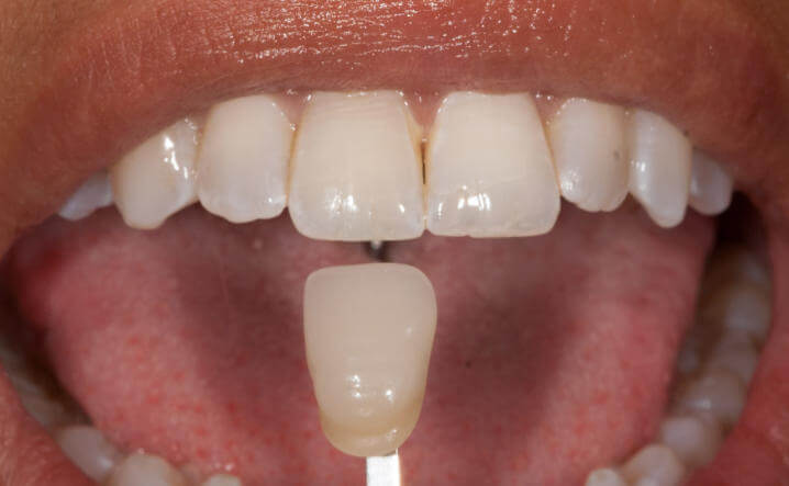 teeth after Internal Whitening