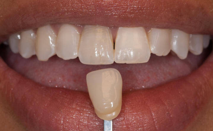 teeth before Internal Whitening