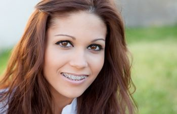 young woman wearing orthodontic metal braces