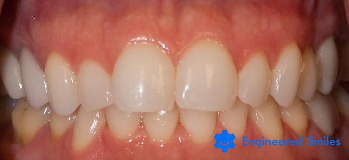 Teeth before bite correction