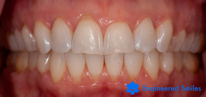 Teeth after bite correction