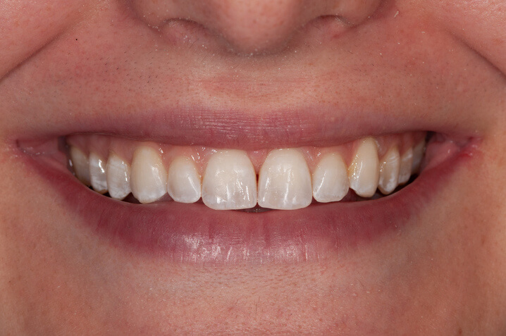 Teeth after space closure with aligners