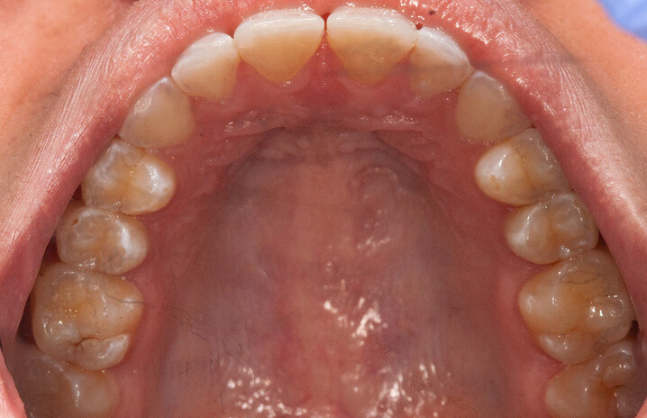 Teeth before space closure with aligners