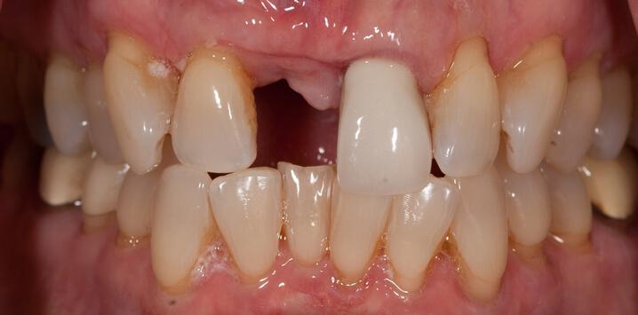 Teeth before dental implant procedure