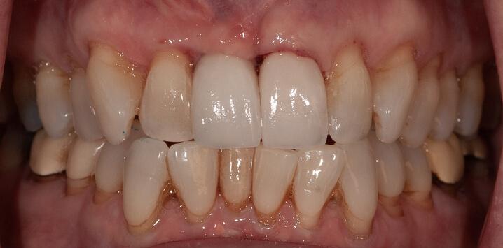 Teeth after dental implant procedure